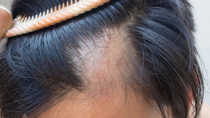 Ngăn ngừa rụng tóc